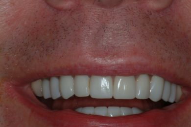 Full mouth restoration with Ceramic Crowns After